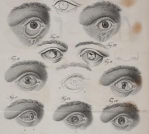 diseased eyes