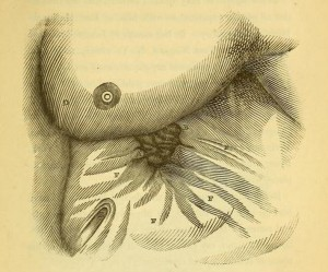 St Martin's stomach