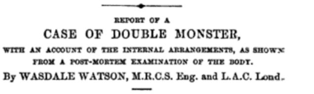 Report of a double monster