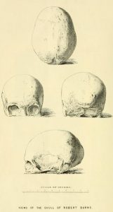 skull of Robert Burns