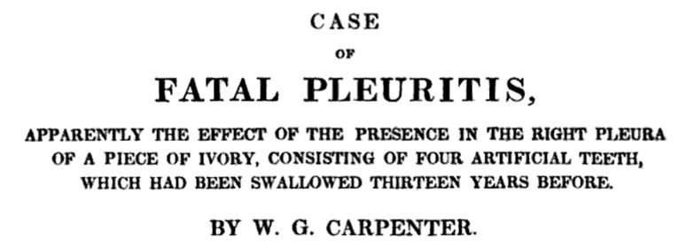 Case of pleuritis