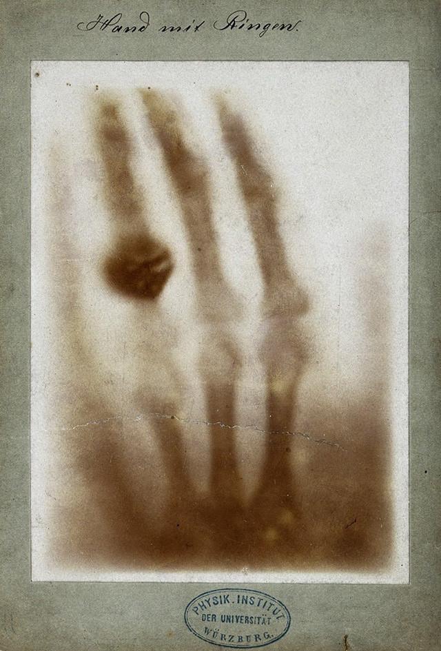 Rontgen's X-ray