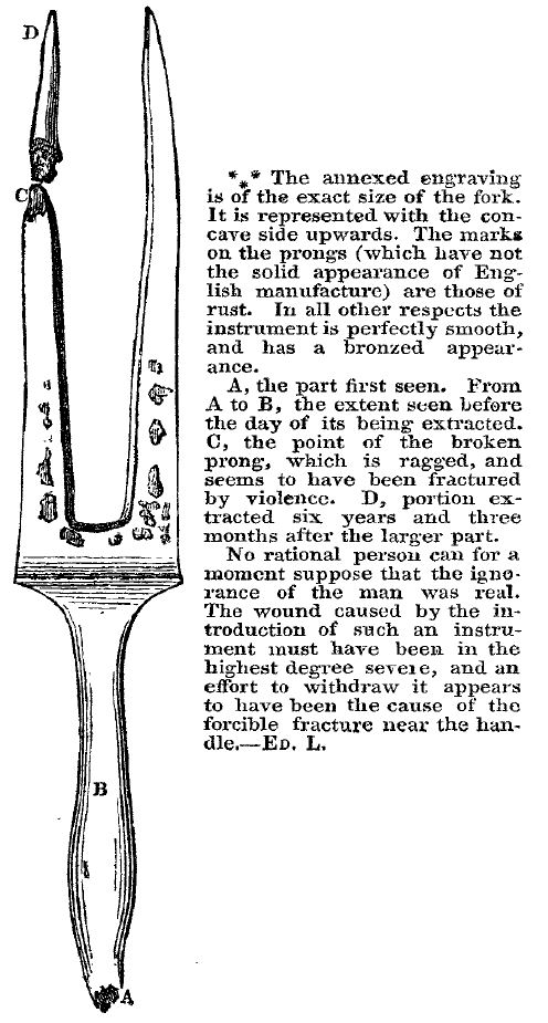 fork engraving