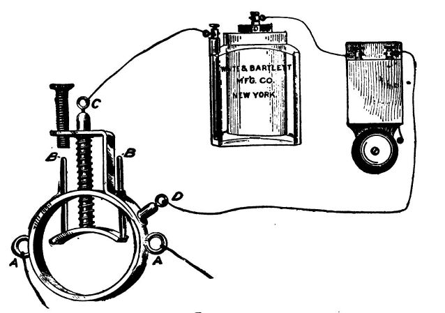 electric spermatorrhea ring