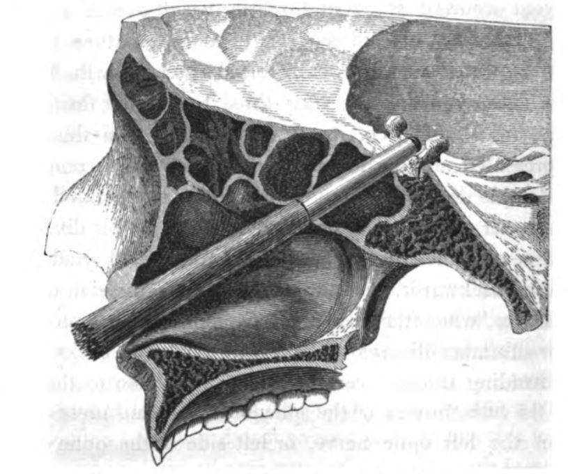 Ferrule embedded in skull