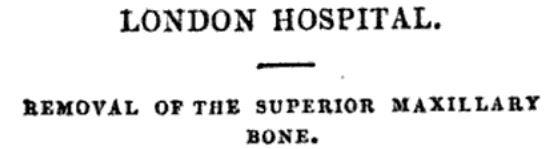 Removal of superior maxillary bone