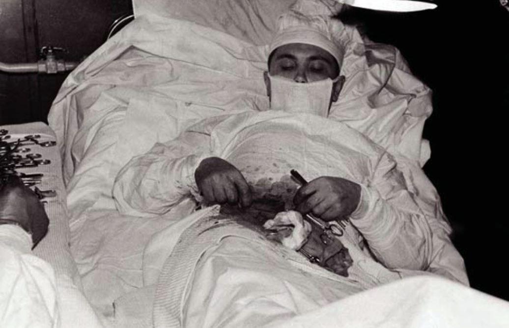 Rogozov appendectomy
