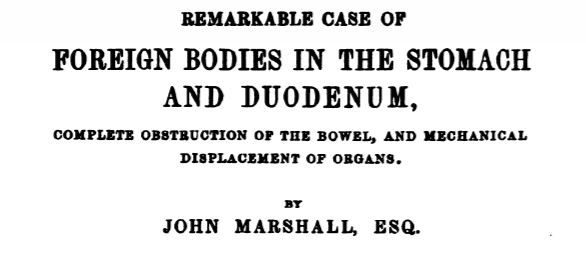 Remarkable case of foreign bodies in the stomach
