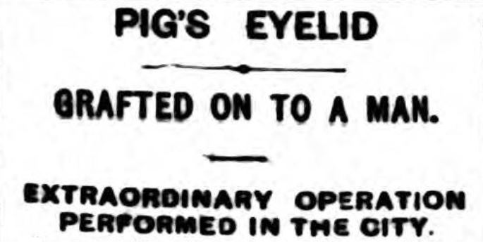 pig's eyelid grafted on to a man