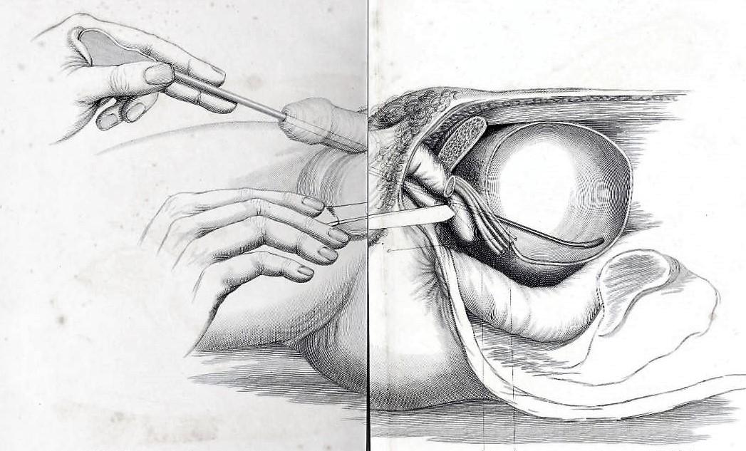 Illustration of straight staff in bladder