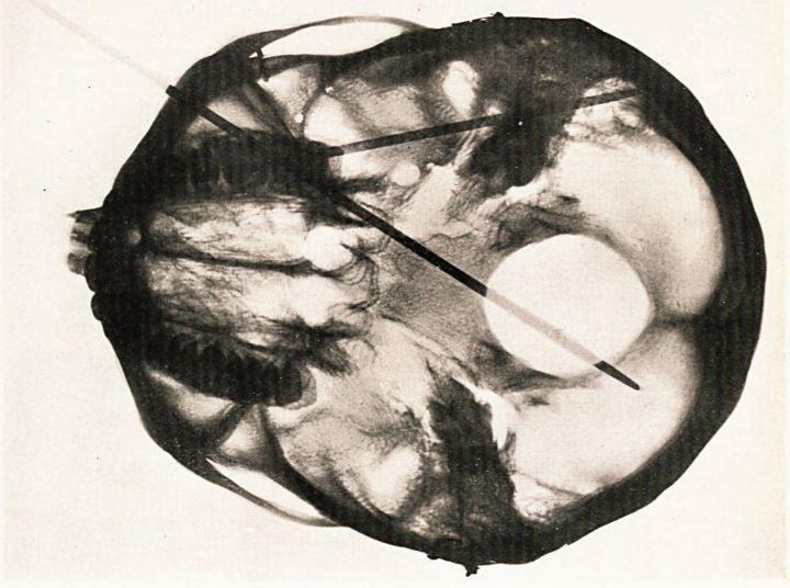 x-ray of skull with needles